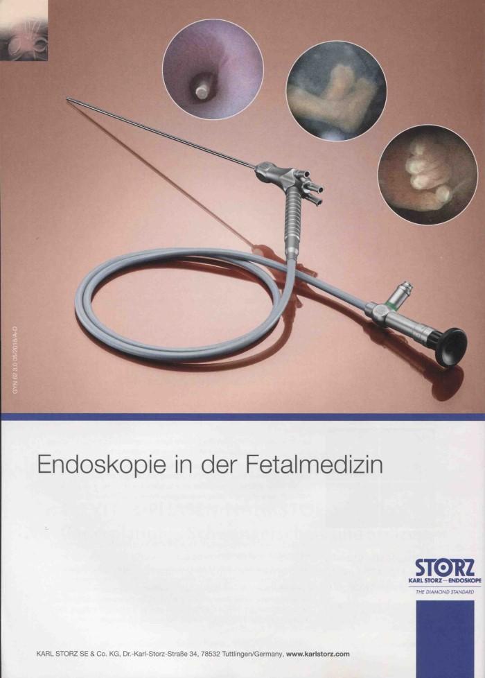 MedTec-Motiv April 2019: Karl Storz Endoskope für Endoskopie in der Fetalmedizin