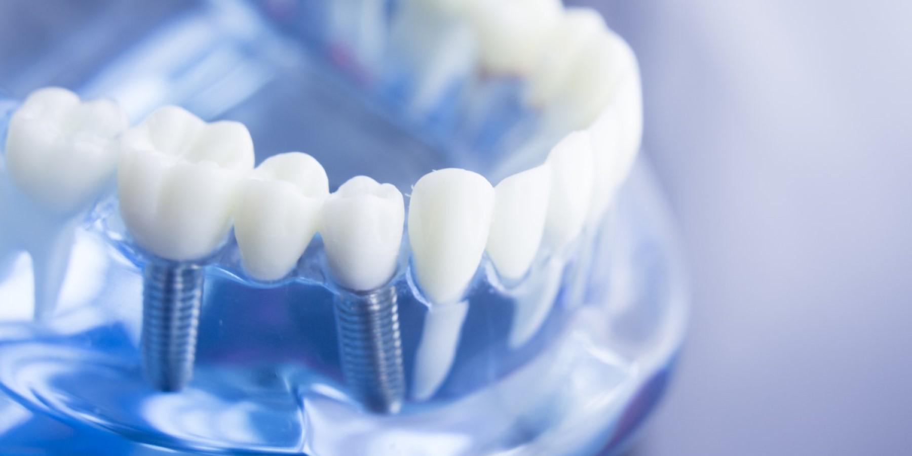 Dental Marketing mit Biss